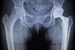 X-ray image of a metal hip implant in a patient