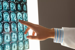 How Can I Prove the Extent of My Brain Injury?