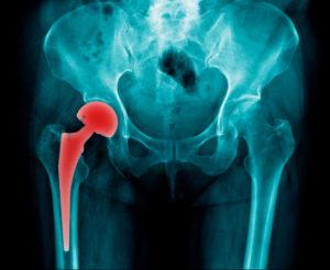 A metal hip implant seen via an x-ray image